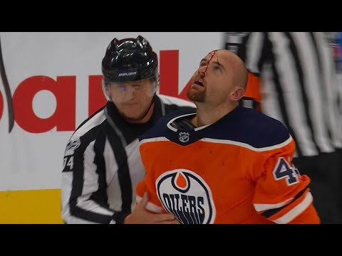 Kassian cut by Glass after throwing hands