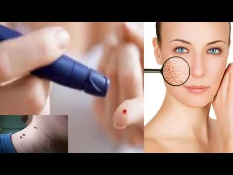 signs-indicate-that-you-have-diabetes!