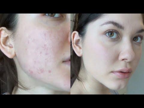 Макияж для проблемной кожи   Тест Mac Mineralize Skinfinish Natural   Как скрыть прыщи и постакне