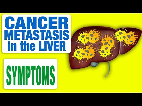 Cancer Metastasis In The Liver
