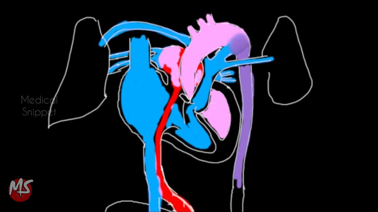 Fetal Circulation   Anatomy   Made easy   3 minutes - YouTube