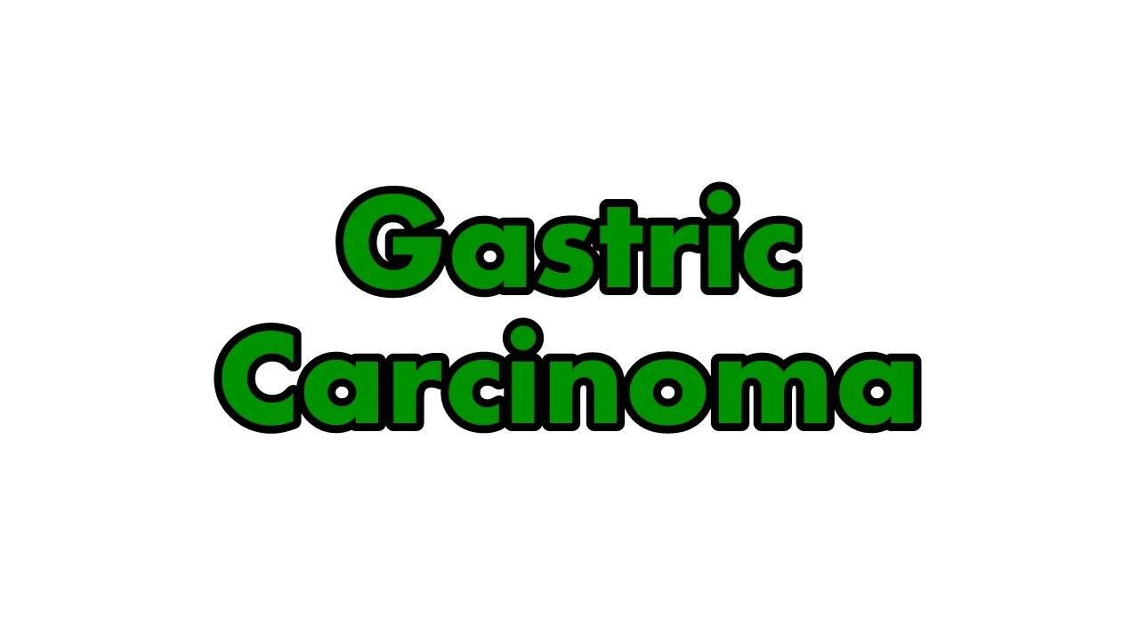 gastric cancer amboss)