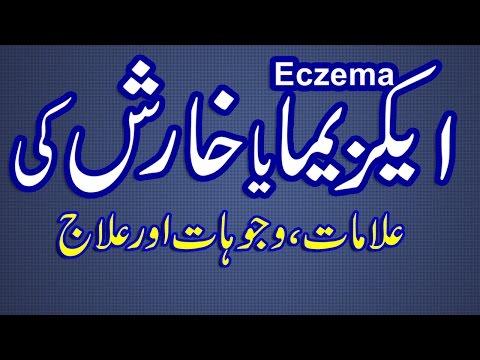 Kharish Ka Asan Ilaj | Eczema Treatment in Urdu | How-To Cure Eczema