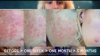 5 month vitamin update / CURING 'rosacea'