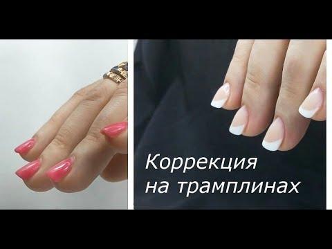 Коррекция на вверх растущие ногти/коррекция на ногтях-трамплинах/сложные ногти