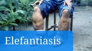 Elefantiasis o filariasis linfática: fotos e información sobre esta enfermedad