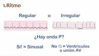 Repaso: EKG en 7 min.