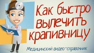 видео Симптомы и лечение крапивницы у детей. Первая помощь ребенку.