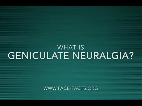 What Is Geniculate Neuralgia?