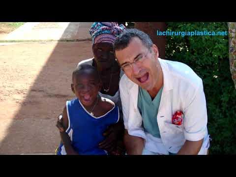 Claudio Bernardi - AICPE ONLUS - Missioni umanitarie in Togo