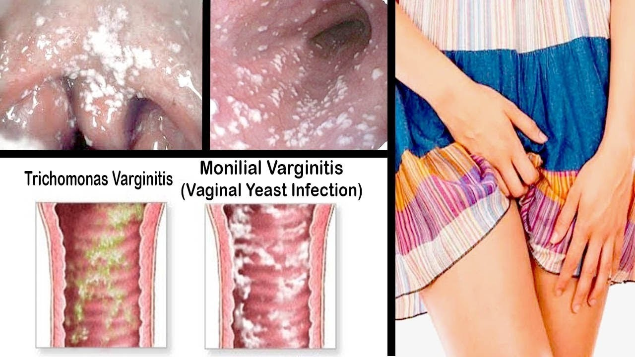 Early Signs Of Yeast Infection Treatment Home Remedies
