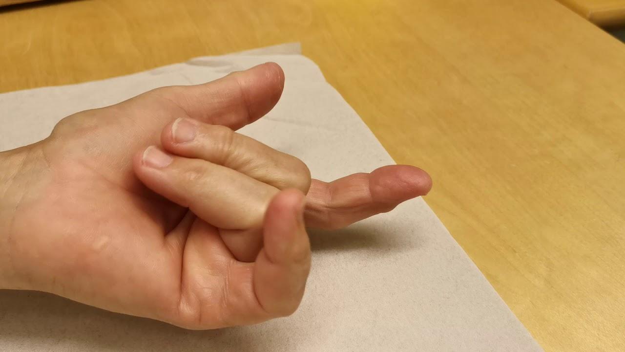 spricka i finger