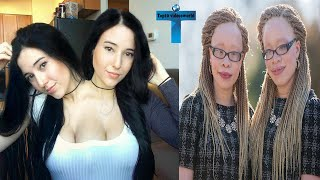 Top 10 Truly Unusual Twins Who Born Different You Have Never Seen In Your Life #2