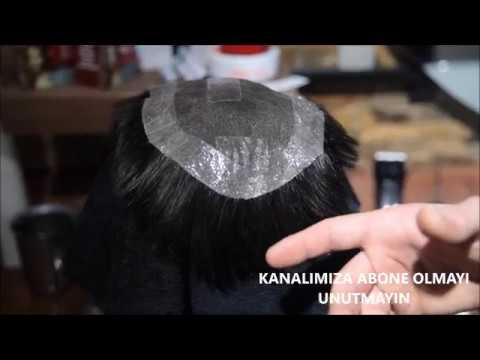 Protez Saç - Saç Ekim Mağdurlarından Sonra Protez Saç Mağdurlarının Tercihi Neohair