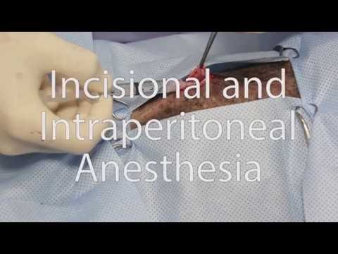 Anesthésie (infiltration et anesthésie intrapéritonéale) - Incisional and Intraperitoneal Anesthesia