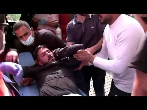 WARNING: GRAPHIC CONTENT – Over 300 hurt in 'Jerusalem Day'