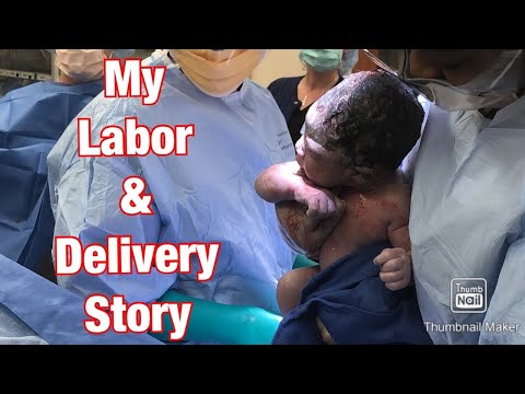 My Labor & Delivery Story - VBAC Attempt - Epidural & C-Section
