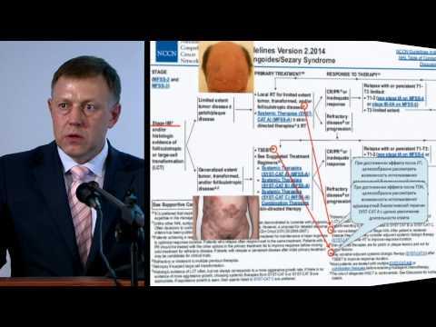 T-клеточная лимфома - фото, прогноз, лечение