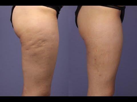 КАК РАССЧИТАТЬ ЛИШНИЙ И ИДЕАЛЬНЫЙ ВЕС? – Как похудеть