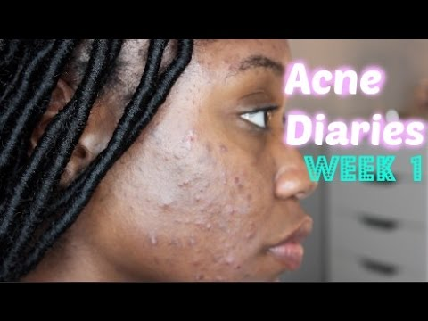Skin Acne Diaries Week 1 Doxycycline Aczone Retin A Shanese Danae Youtube