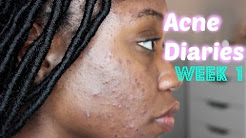 hqdefault - What Kind Of Acne Does Aczone Treat
