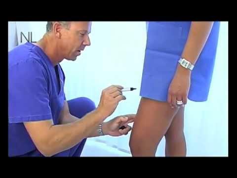 krampfadern entfernen ohne op
