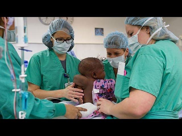 Как хирурги убрали у девочки лишние конечности