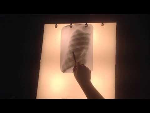 Диссеминированный туберкулез на рентгене