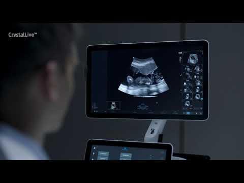 Samsung Medison Hera W10 - премиальная УЗИ-система Samsung Medison