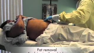 MyShape Lipo Testimonial, Abdominal Liposuction, Liposuction Specialist, Large Volume Liposuction