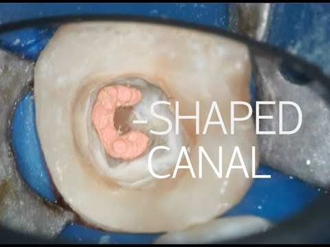 C SHAPED CANAL ROOT CANAL TREATMENT