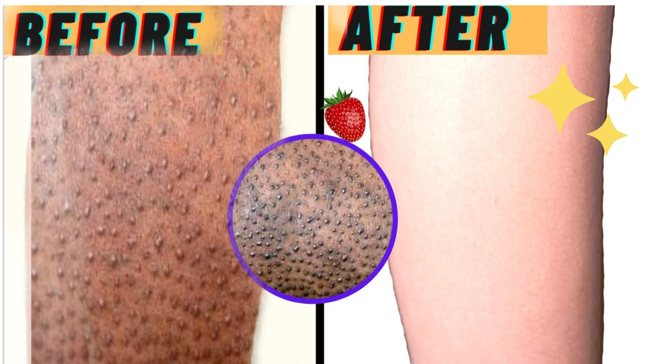 HOW TO GET RID OF STRAWBERRY LEGS IN ONE DAY! Get Rid Of Keratosis Pilaris And Dark Spots On Legs