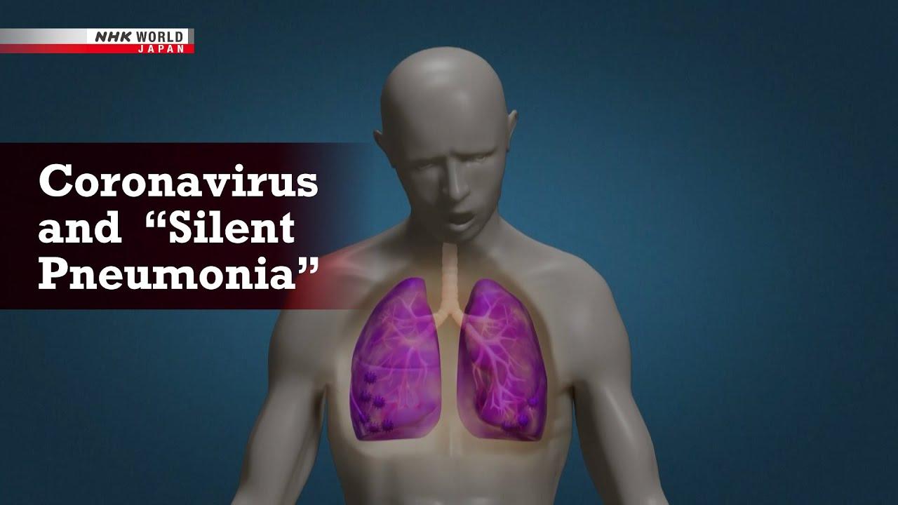 """Download COVID-19: Coronavirus and """"Silent Pneumonia"""" - NHK Documentary"""