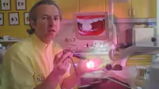 Fogíny gyulladás kezelése Safe Laserrel