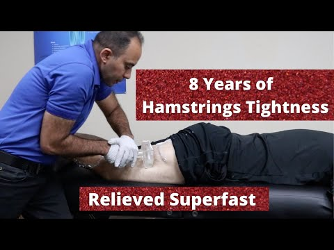 8 Years Of * Hamstrings * Tightness Relieved In A Blink (REAL TREATMENT!!!)