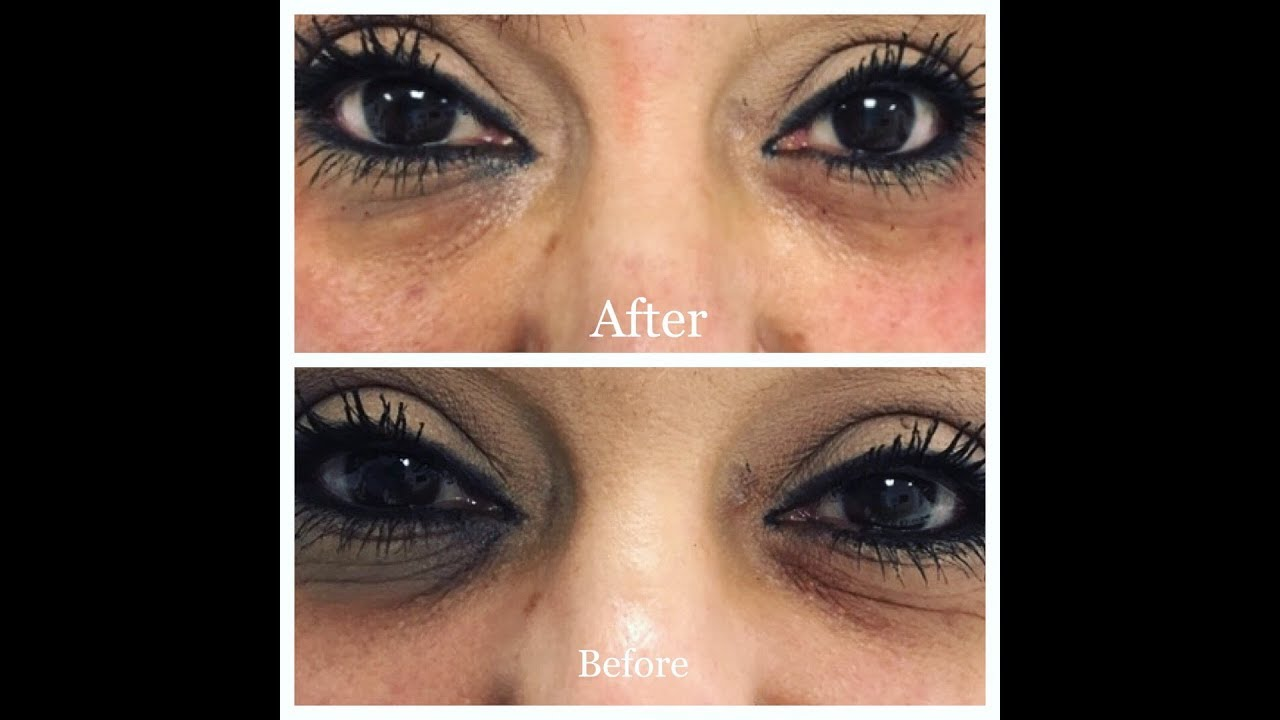 Mörka ringar under ögonen - Tear Trough Treatment by Kiarash Moradi ... 19b78f0a22c77