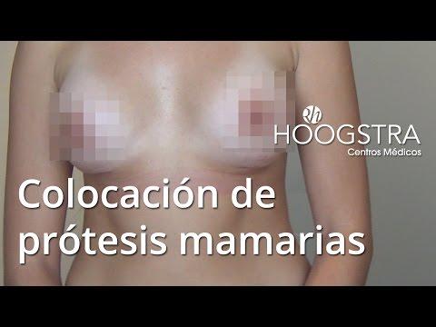 Colocación de prótesis mamarias (16021)