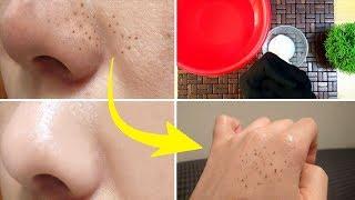 Permanently Remove BLACKHEADS WHITEHEADS very Simple Home Remedy Urdu Hindi