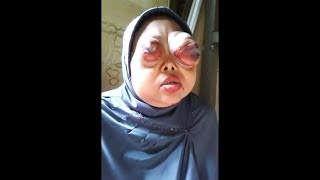 this womans eyes literally exploded..