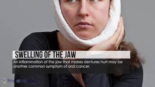 The Early Signs of Oral Cancer