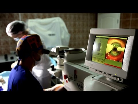 Лазерная коррекция зрения: коррекция зрения по технологии LASIK в Медлайф - 2