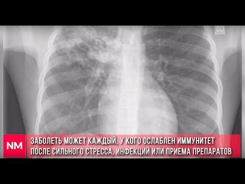 Туберкулез в Молдове и в мире: как можно заразиться, кто в группе риска и как распознать туберкулез