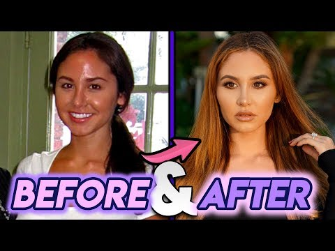 Catherine Paiz | Before and After Transformations | Plastic Surgery Transformation