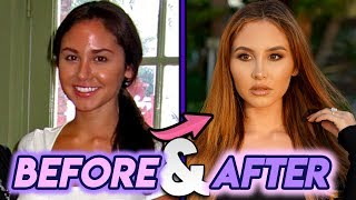 Catherine Paiz Before and After Transformations Plastic Surgery Transformation