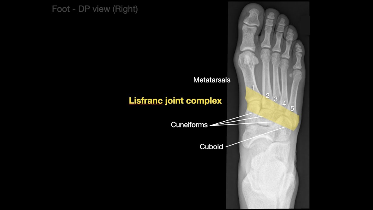 Anatomy Of Foot X Rays Youtube