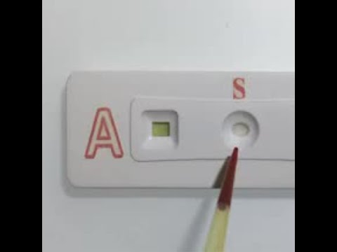 Paper strip test determines blood type