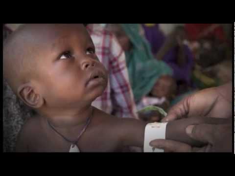 1,000,000 children at risk in West Africa #sahelNOW