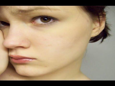 نتيجة بحث الصور عن شحوب الوجه