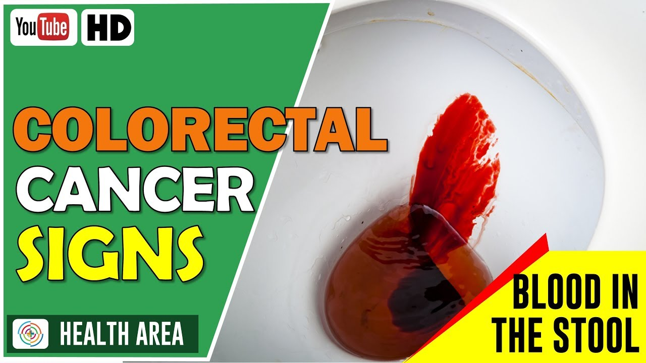 6 Early Signs Of Colorectal Cancer Youtube