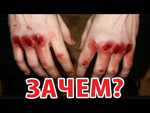 Болят кулаки после груши